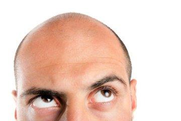 Lustige bilder mann mit glatze